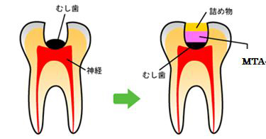 患者さんに優しい、可能な限り「痛くない」歯科治療