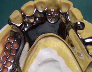 入れ歯のフレーム