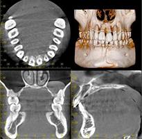 歯科用CTの活用
