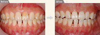 治療前と治療後にお口の写真を撮影