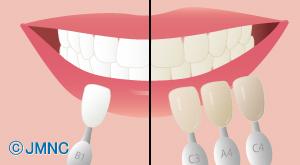 歯の色が気になる