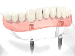 現在、総入れ歯を使っている方へ