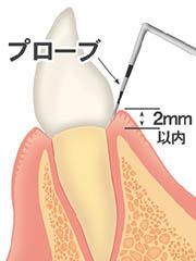 歯周病の進行度合いをチェックする検査